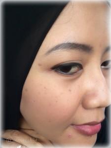 Penampakan noda flek hitam di wajah